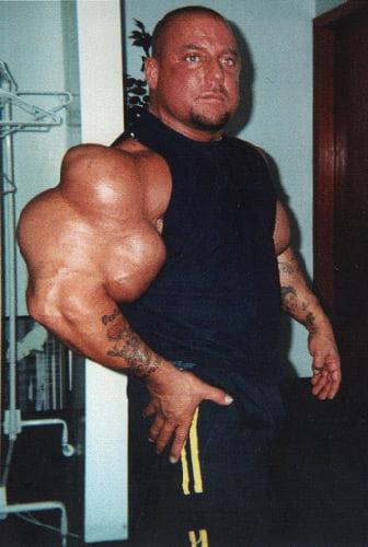 misvormde spieren door bijwerkingen anabolen